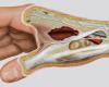 corte anatómico mano ilustracion norarte
