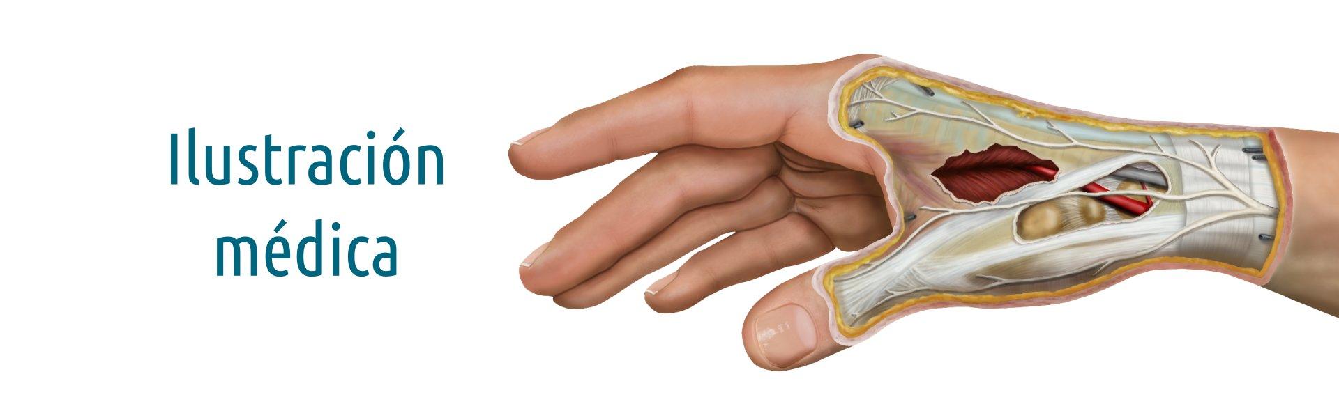 Servicio de Ilustracion médica. Ilustración del corte anatómico de una mano. Dibujo digital matricial. NorArte Visual Science.